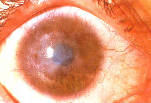 Chlamydia In The Eye Human News